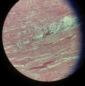 Svalový Jupiter